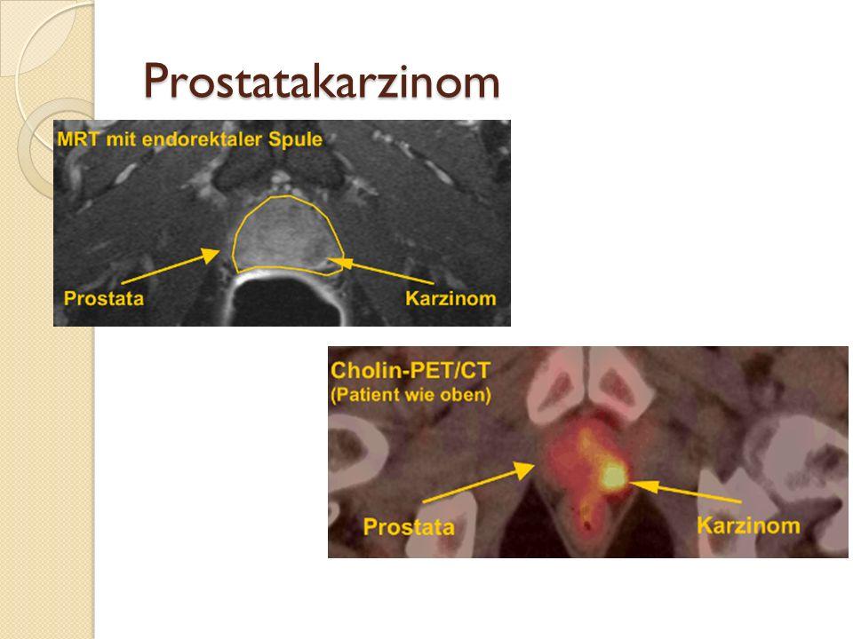Prostatakarzinom