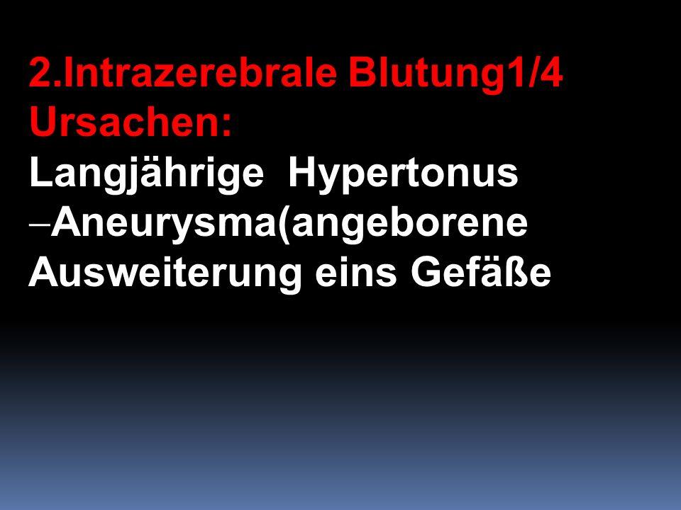 2.Intrazerebrale Blutung1/4
