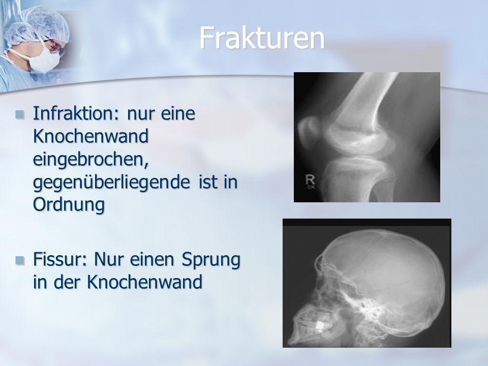 Frakturen Infraktion: nur eine Knochenwand eingebrochen, gegenüberliegende ist in Ordnung.