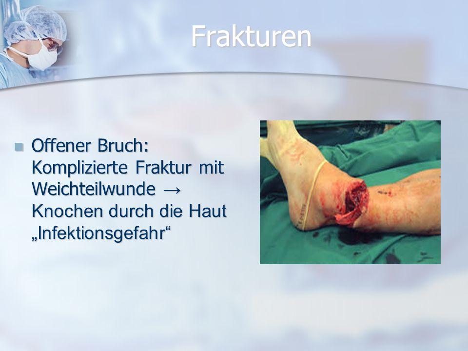 """Frakturen Offener Bruch: Komplizierte Fraktur mit Weichteilwunde → Knochen durch die Haut """"Infektionsgefahr"""