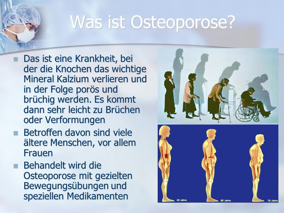 Was ist Osteoporose