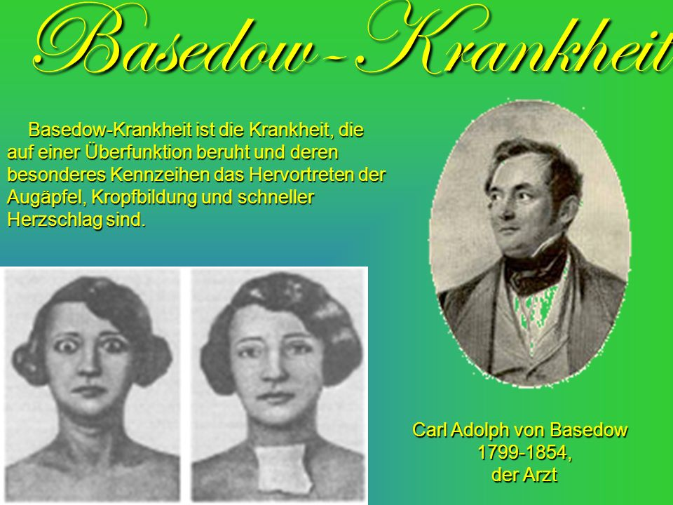 Carl Adolph von Basedow