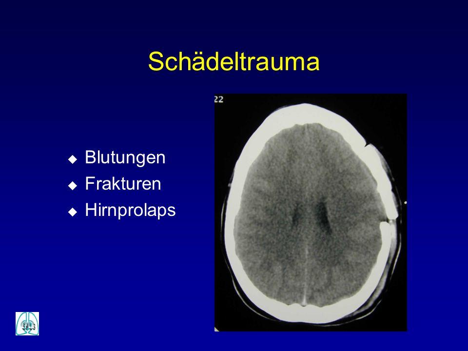 Schädeltrauma Blutungen Frakturen Hirnprolaps