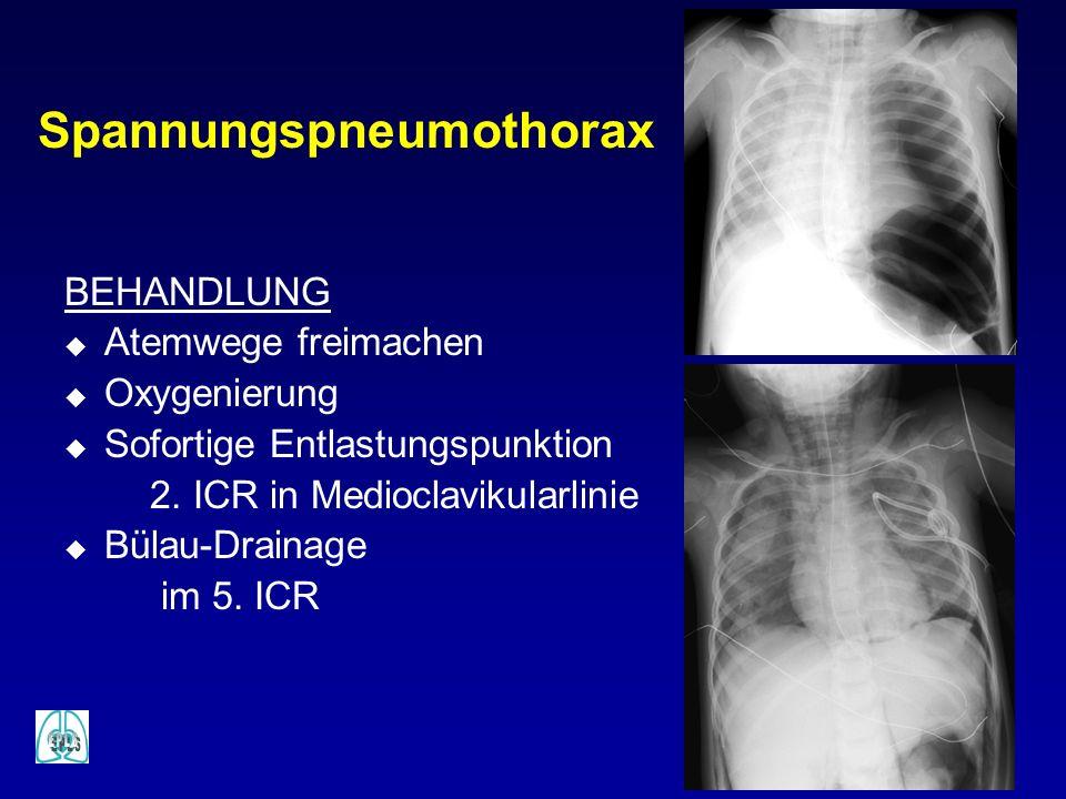Spannungspneumothorax