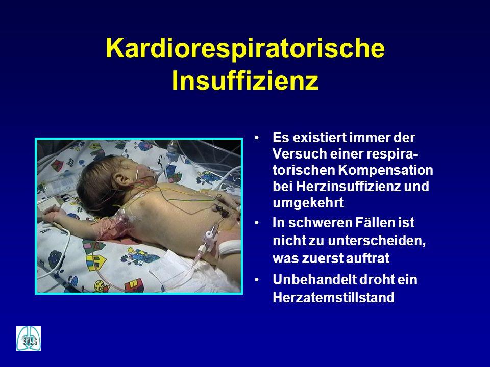 Kardiorespiratorische Insuffizienz