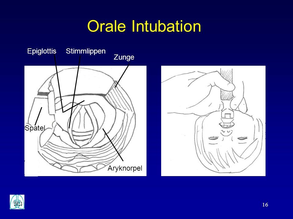 Orale Intubation Spatel Epiglottis Aryknorpel Zunge Stimmlippen