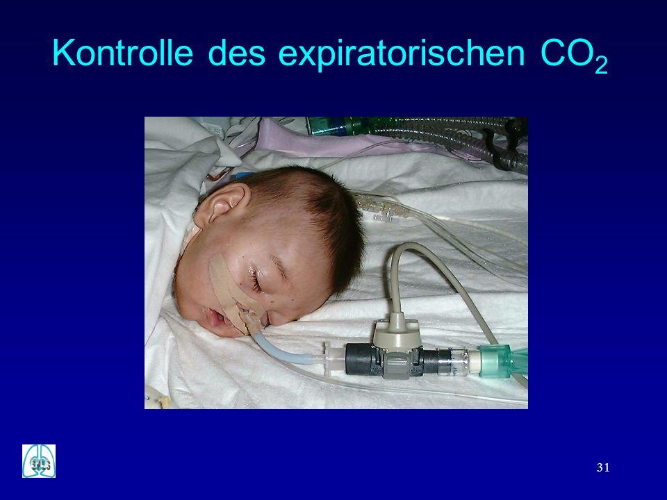 Kontrolle des expiratorischen CO2