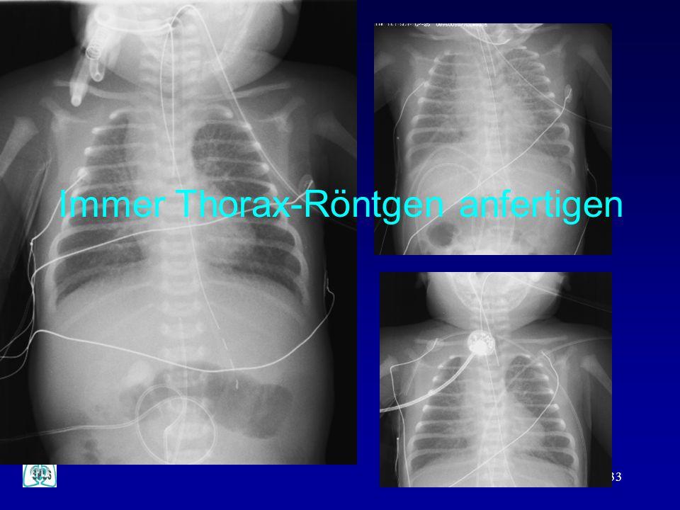 Immer Thorax-Röntgen anfertigen