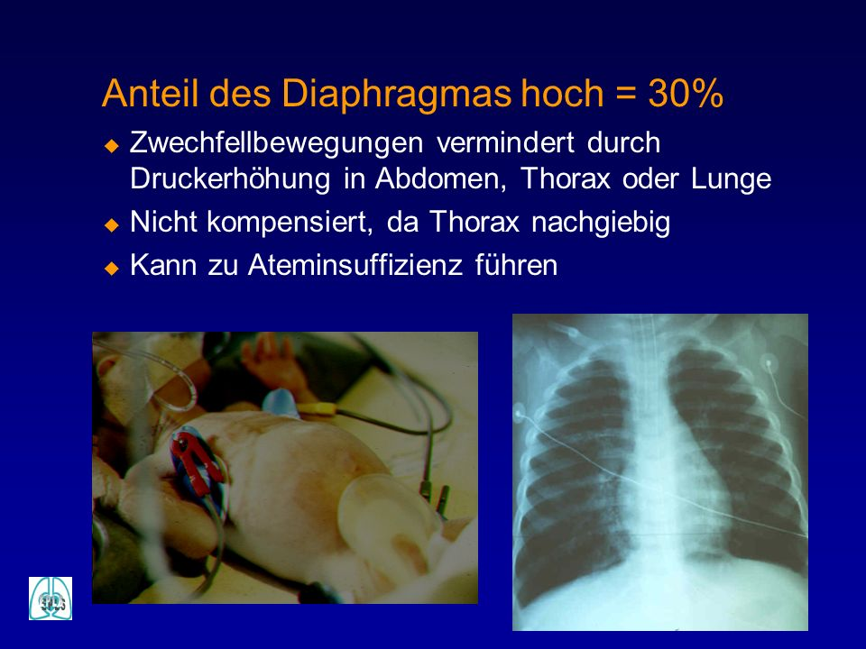Anteil des Diaphragmas hoch = 30%