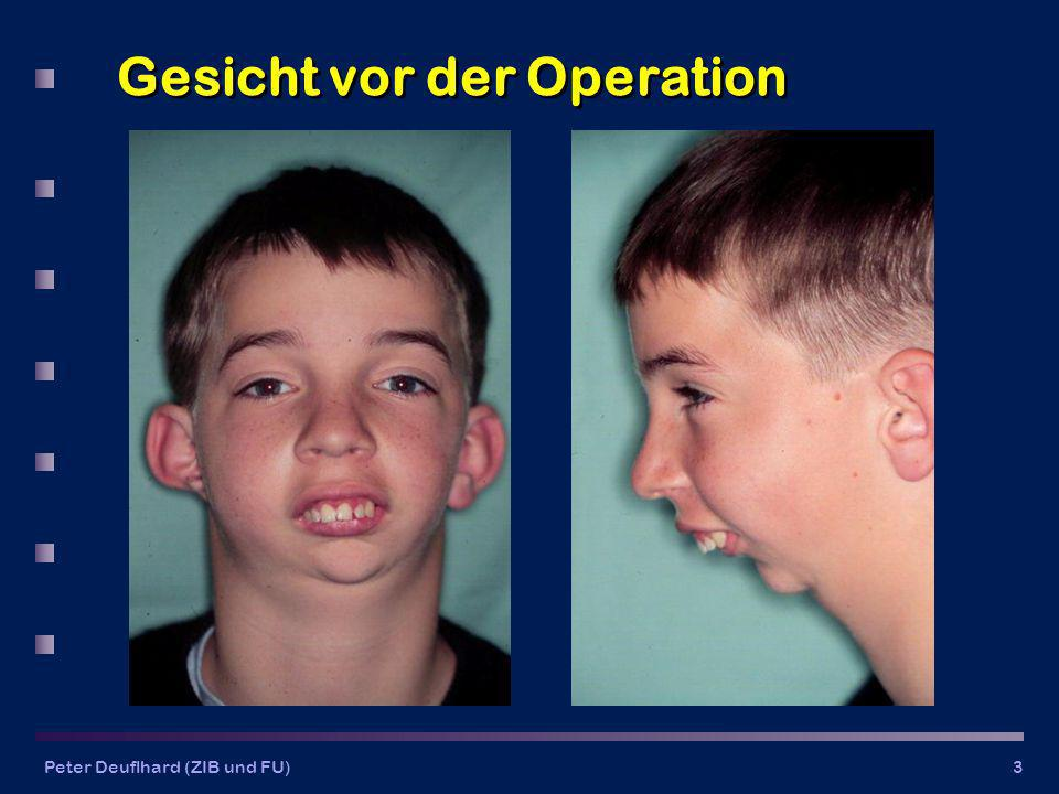 Gesicht vor der Operation