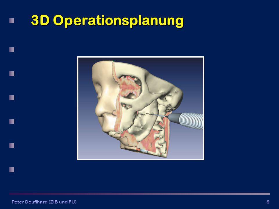 3D Operationsplanung