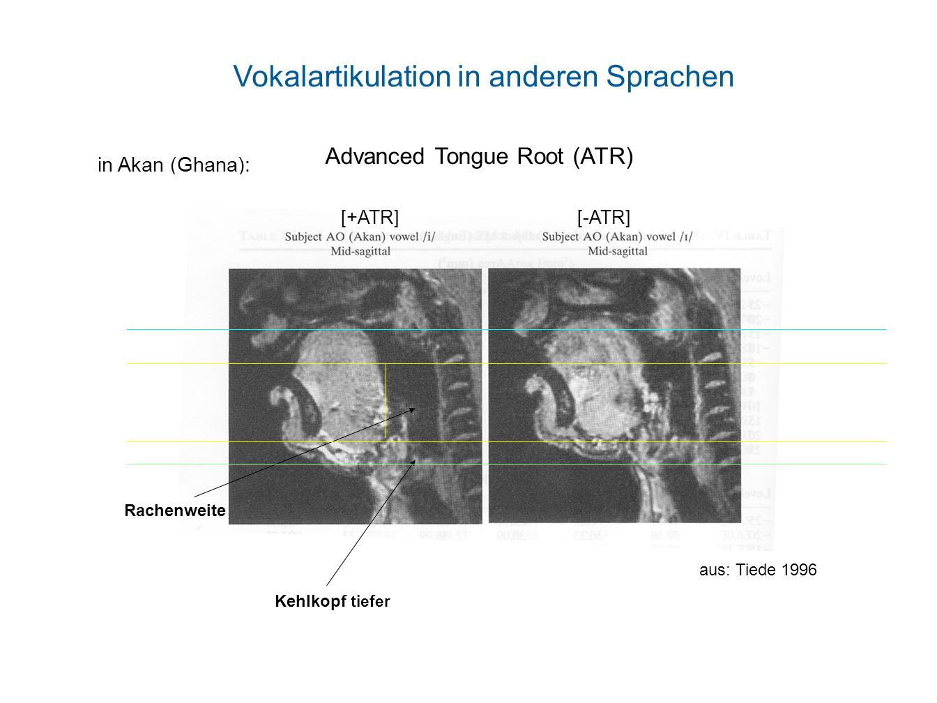 Vokalartikulation in anderen Sprachen