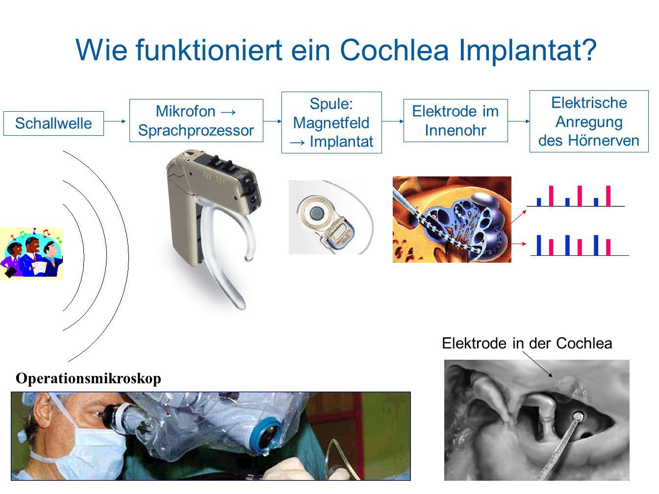 h ren mit cochlea implantaten ppt herunterladen. Black Bedroom Furniture Sets. Home Design Ideas