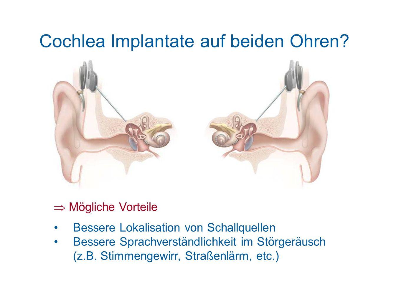 Cochlea Implantate auf beiden Ohren