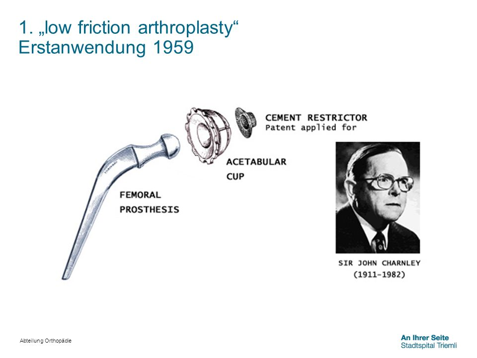 "1. ""low friction arthroplasty Erstanwendung 1959"