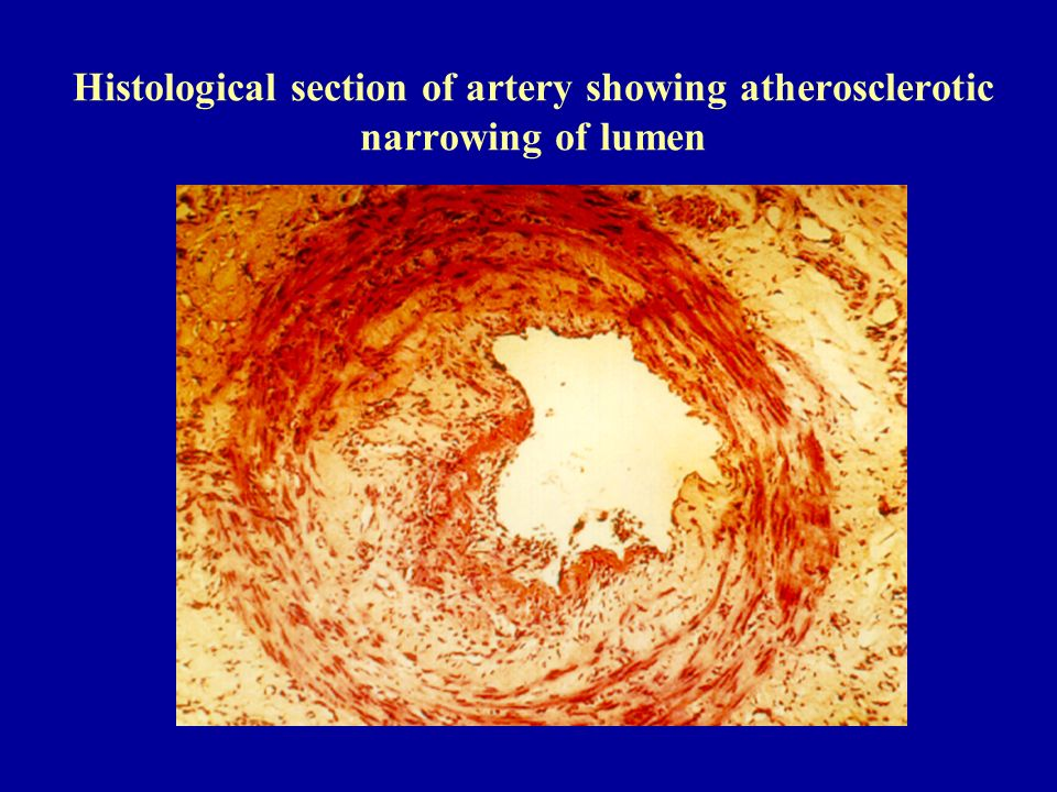 Histological section of artery showing atherosclerotic narrowing of lumen