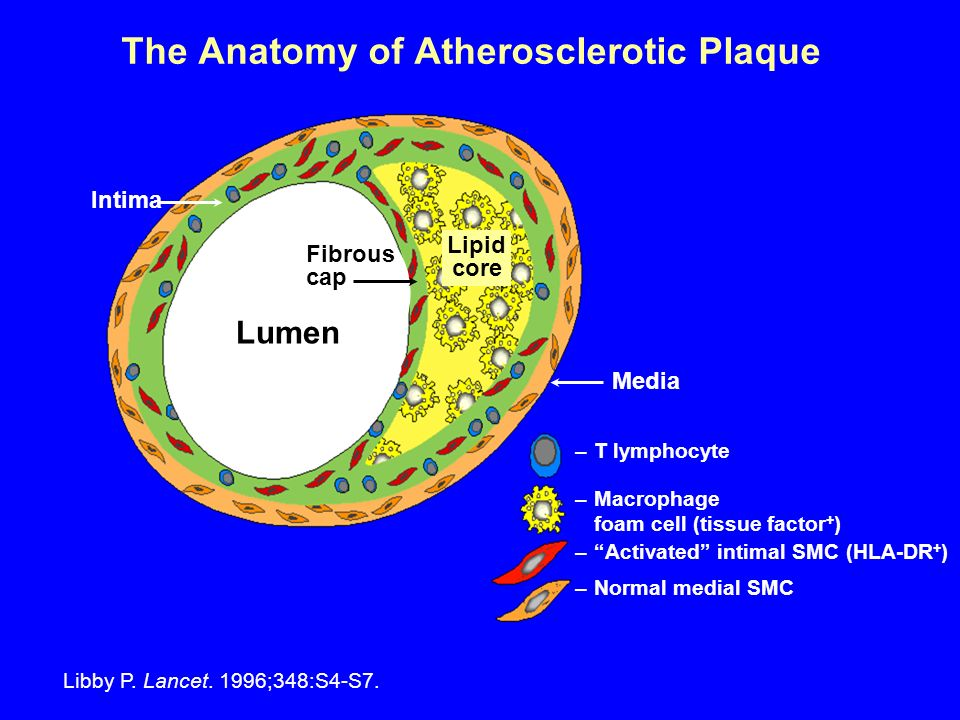 The Anatomy of Atherosclerotic Plaque