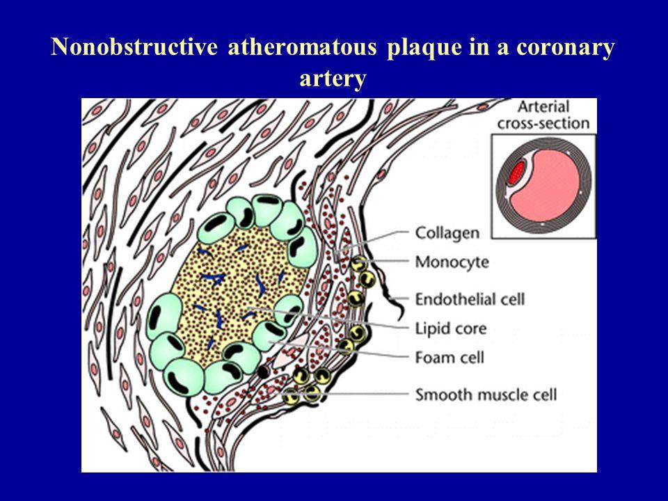 Nonobstructive atheromatous plaque in a coronary artery