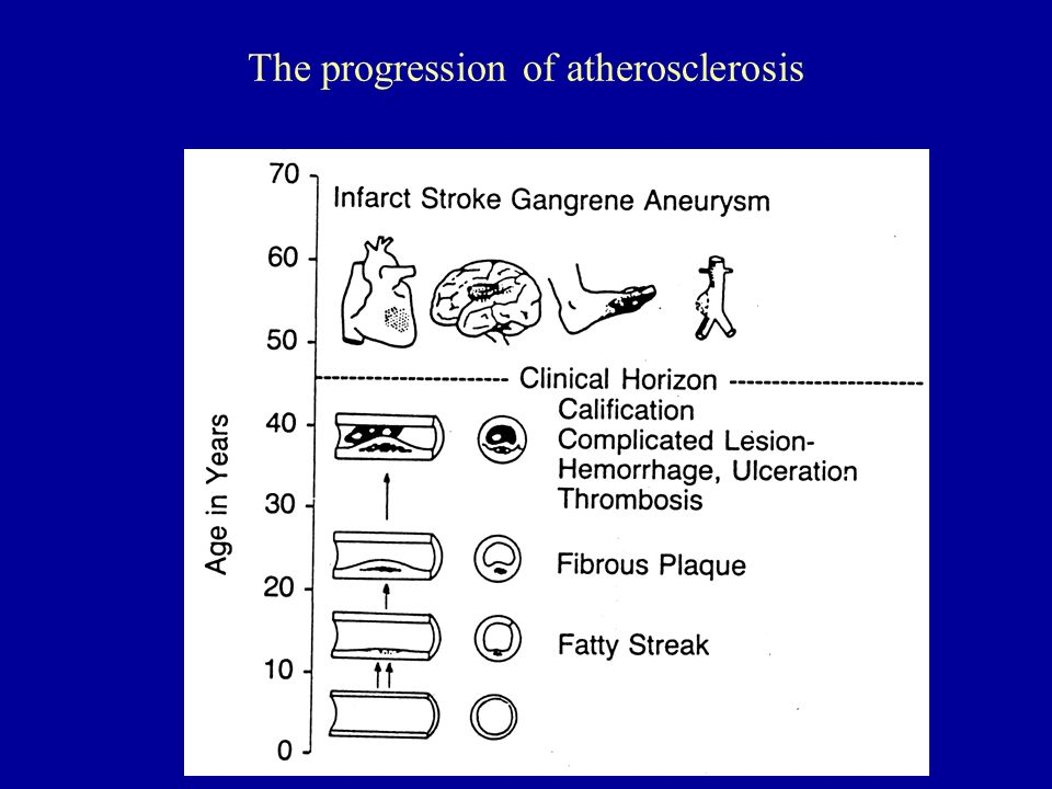 The progression of atherosclerosis