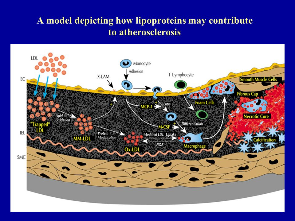 A model depicting how lipoproteins may contribute to atherosclerosis