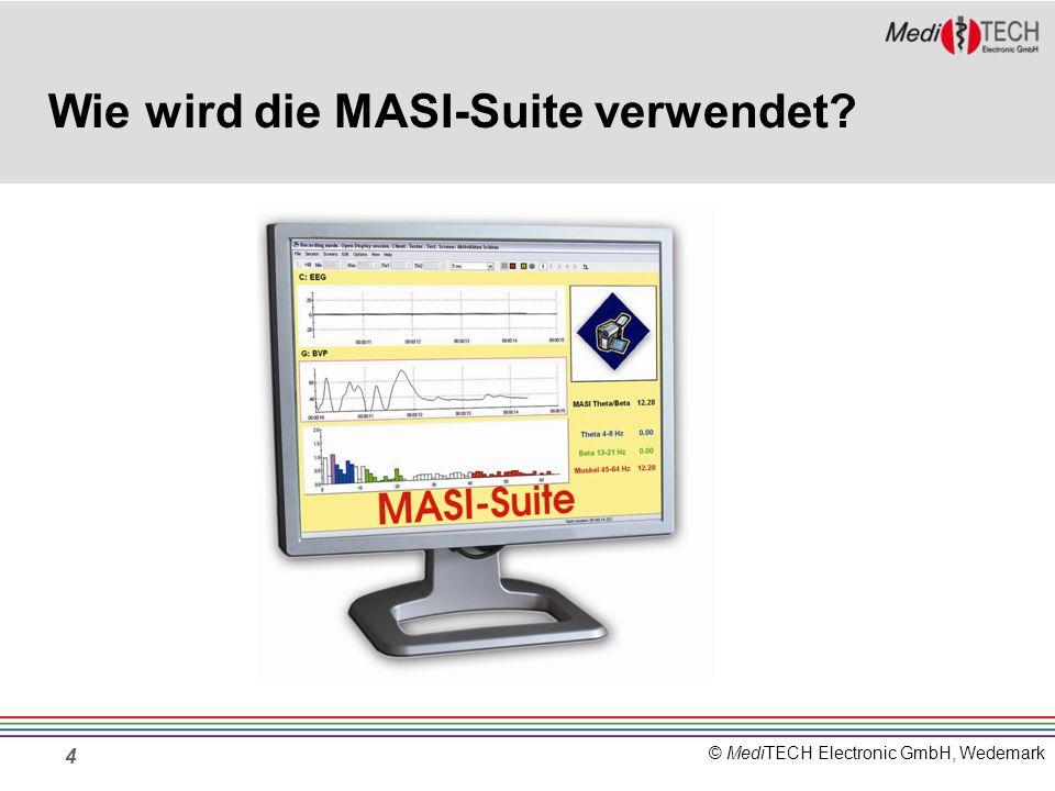 Wie wird die MASI-Suite verwendet