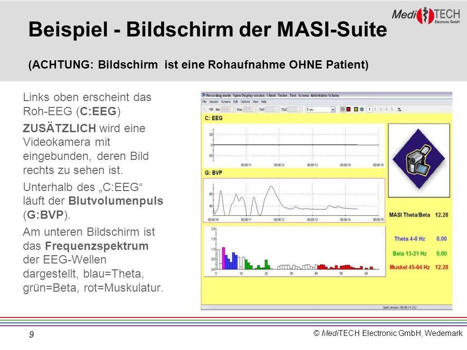 Beispiel - Bildschirm der MASI-Suite (ACHTUNG: Bildschirm ist eine Rohaufnahme OHNE Patient)