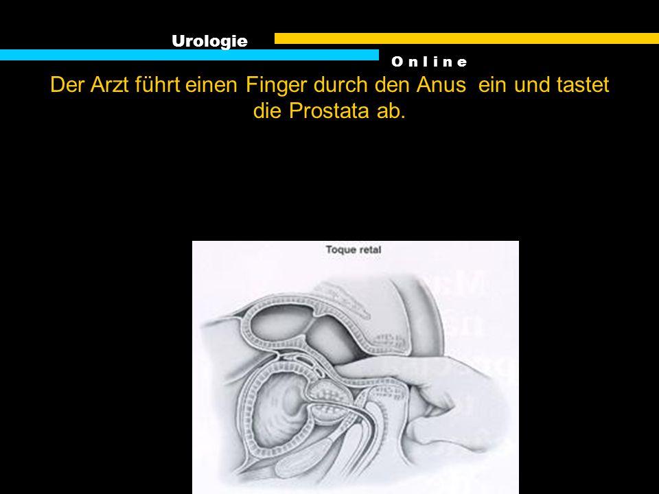 Urologie Der Arzt führt einen Finger durch den Anus ein und tastet die Prostata ab. O n l i n e