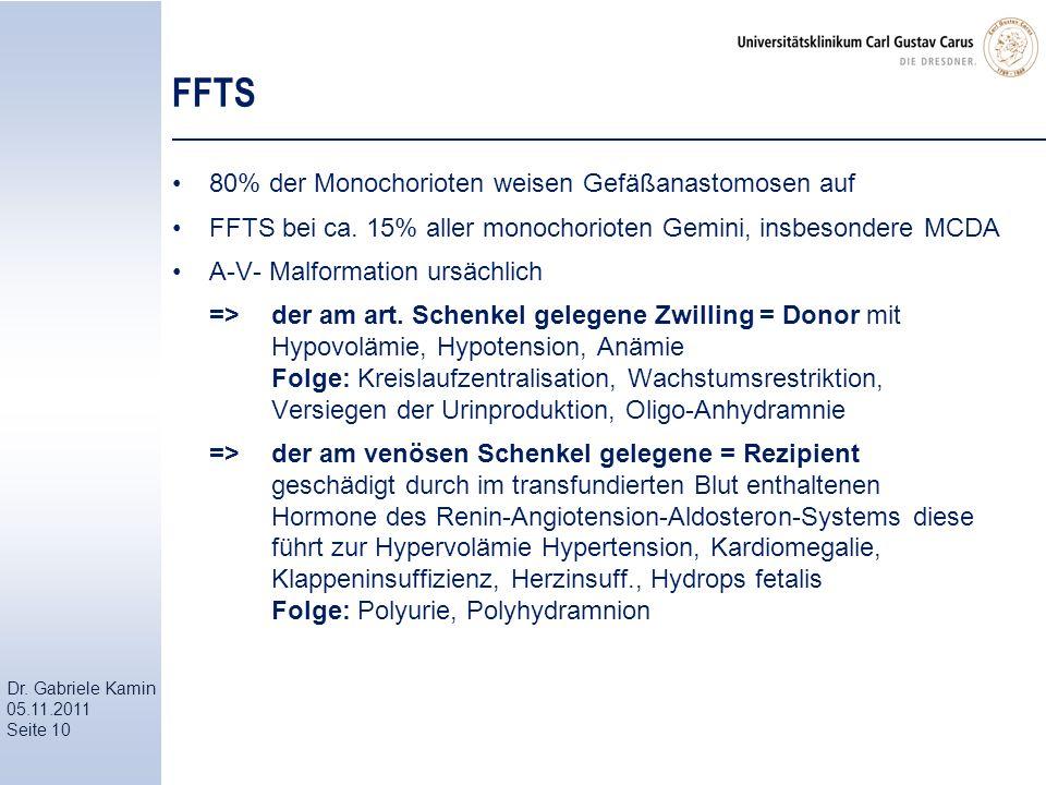 FFTS 80% der Monochorioten weisen Gefäßanastomosen auf