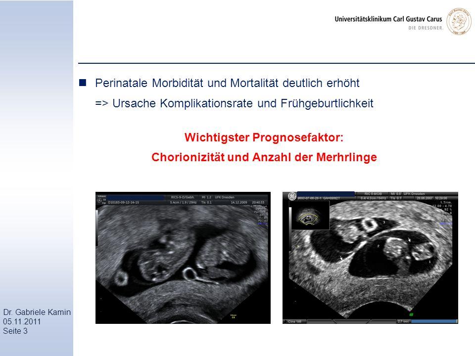 Wichtigster Prognosefaktor: Chorionizität und Anzahl der Merhrlinge