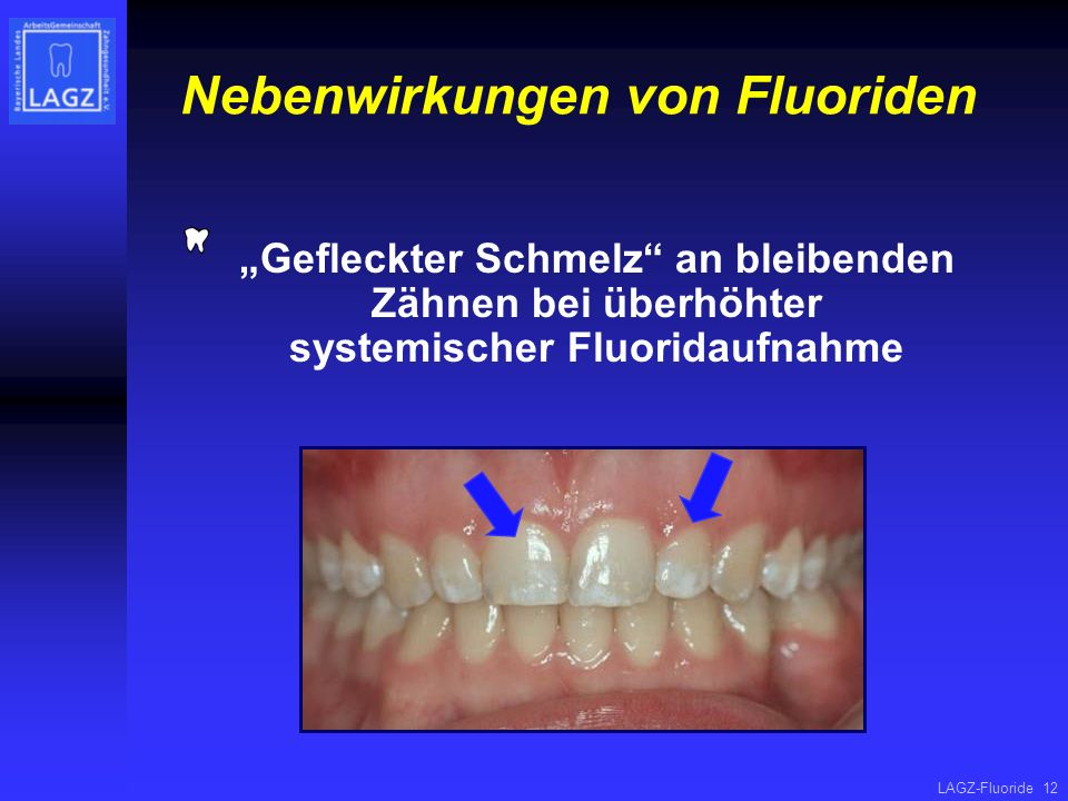 Nebenwirkungen von Fluoriden