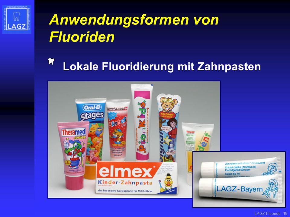 Anwendungsformen von Fluoriden