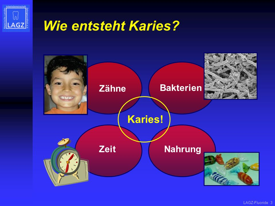 Wie entsteht Karies Zähne Bakterien Karies! Zeit Nahrung