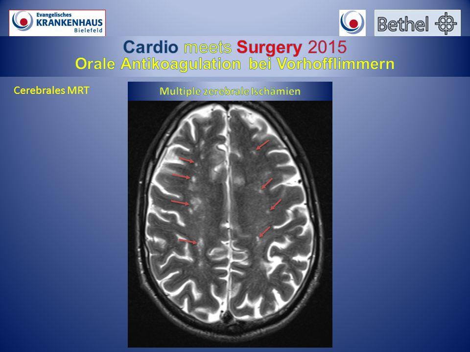 Orale Antikoagulation bei Vorhofflimmern Multiple zerebrale Ischämien
