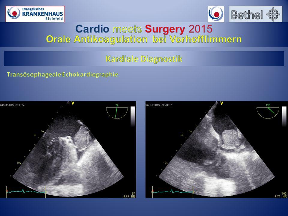 Orale Antikoagulation bei Vorhofflimmern