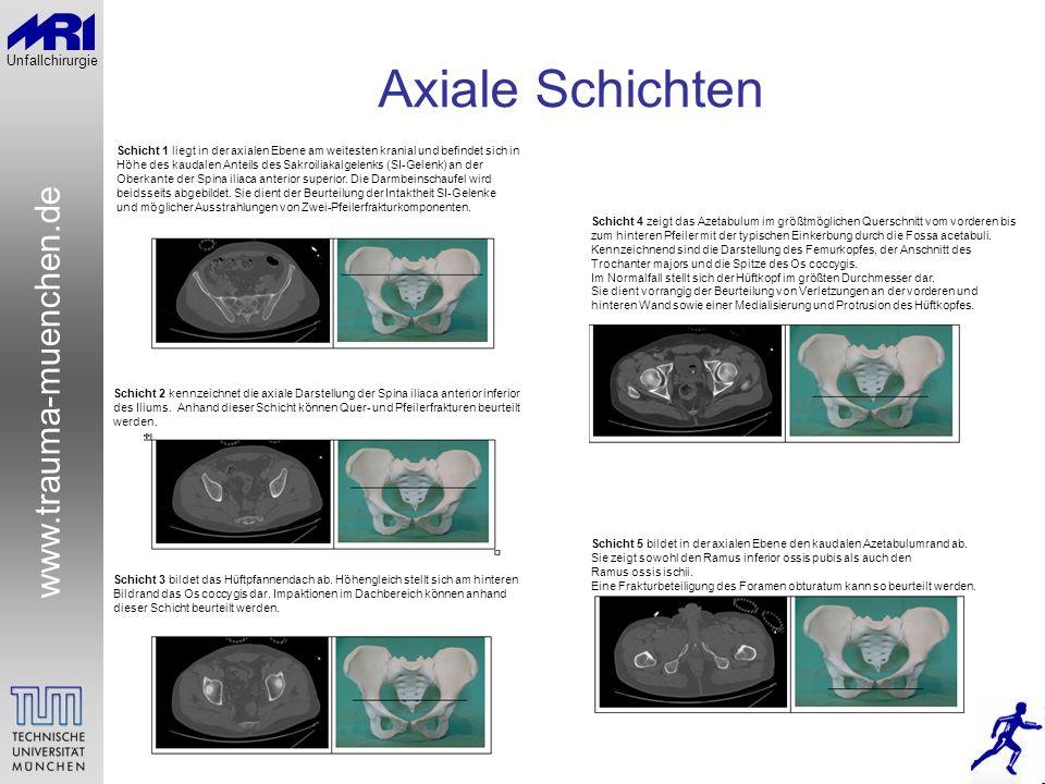 Axiale Schichten Schicht 1 liegt in der axialen Ebene am weitesten kranial und befindet sich in.