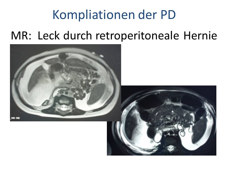 MR: Leck durch retroperitoneale Hernie