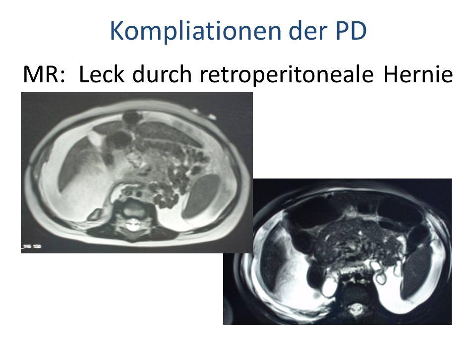 MR: Leck durch retroperitoneale Hernie
