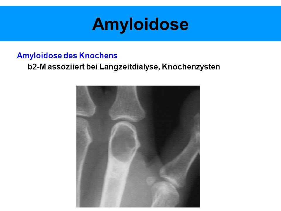 Amyloidose Amyloidose des Knochens