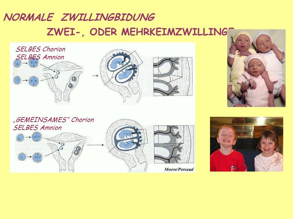 ZWEI-, ODER MEHRKEIMZWILLINGE