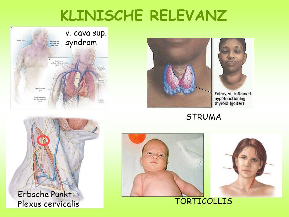 KLINISCHE RELEVANZ v. cava sup. syndrom STRUMA Erbsche Punkt: