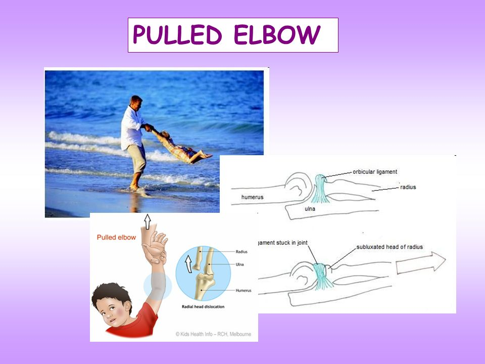 PULLED ELBOW