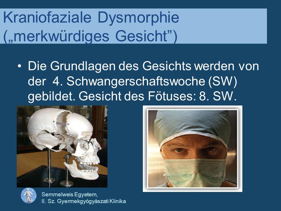 """Kraniofaziale Dysmorphie (""""merkwürdiges Gesicht )"""