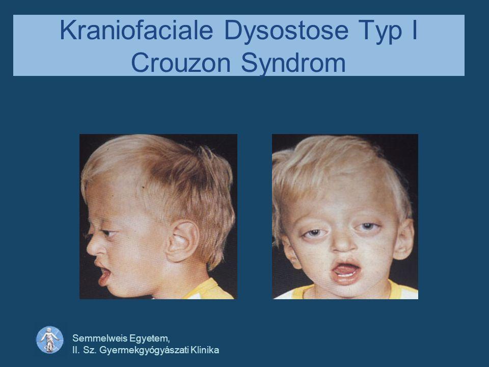 Kraniofaciale Dysostose Typ I Crouzon Syndrom