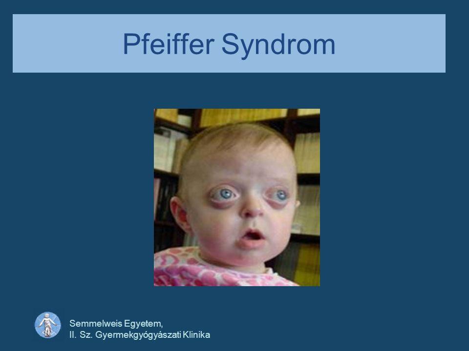 Pfeiffer Syndrom Semmelweis Egyetem,