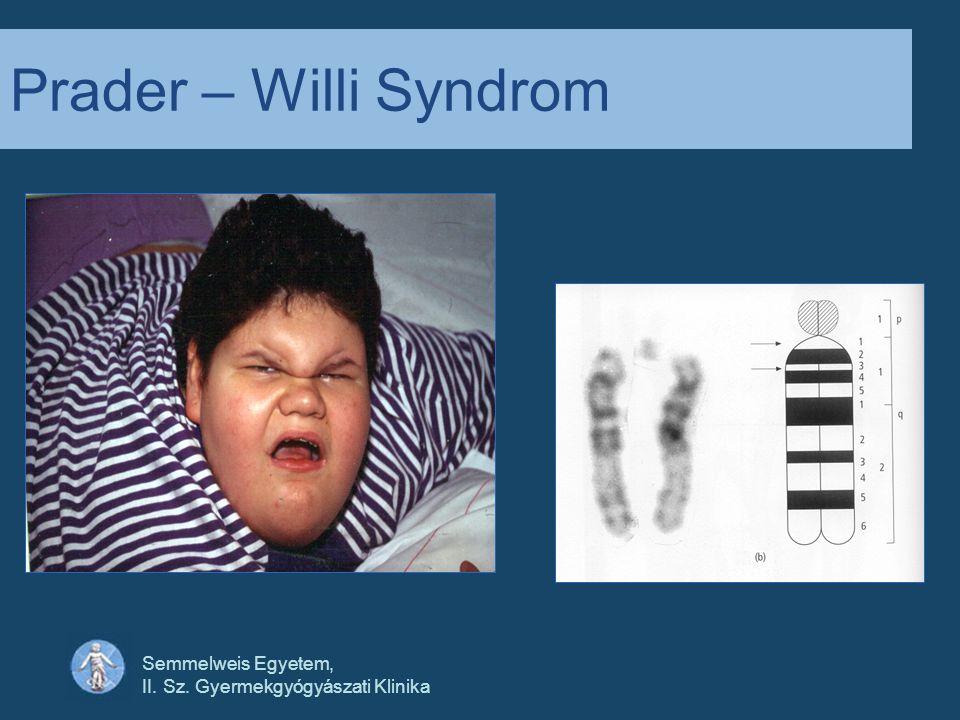 Prader – Willi Syndrom Semmelweis Egyetem,