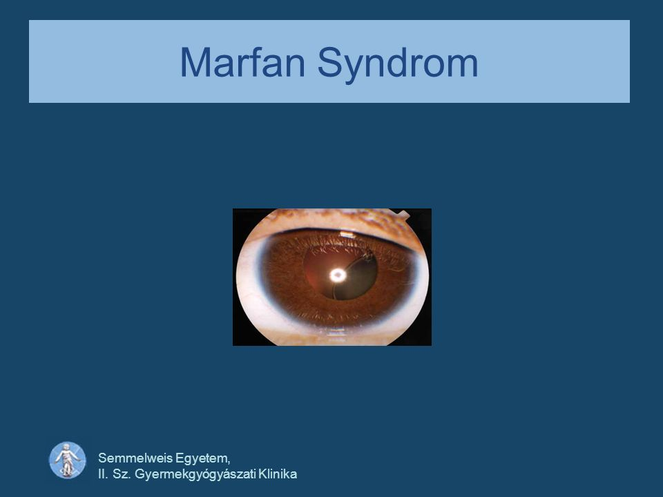 Marfan Syndrom Semmelweis Egyetem, II. Sz. Gyermekgyógyászati Klinika