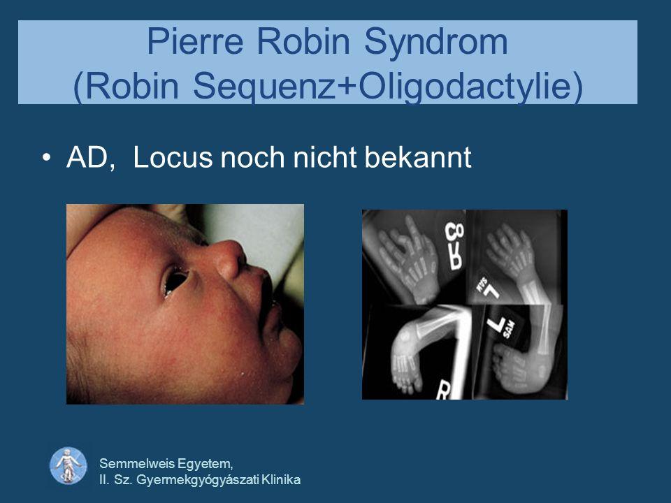 Pierre Robin Syndrom (Robin Sequenz+Oligodactylie)