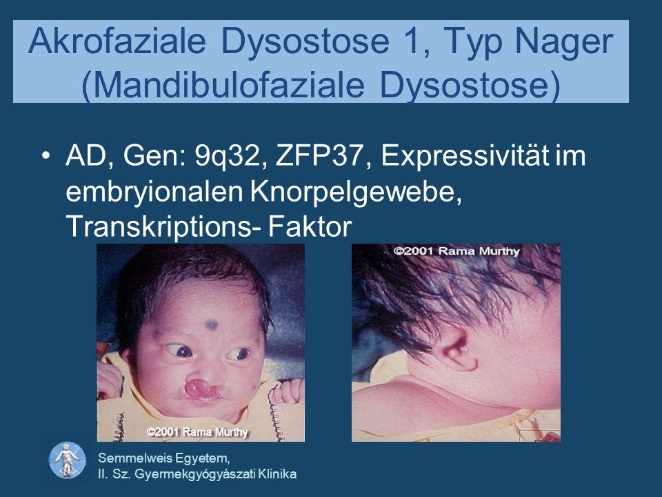 Akrofaziale Dysostose 1, Typ Nager (Mandibulofaziale Dysostose)