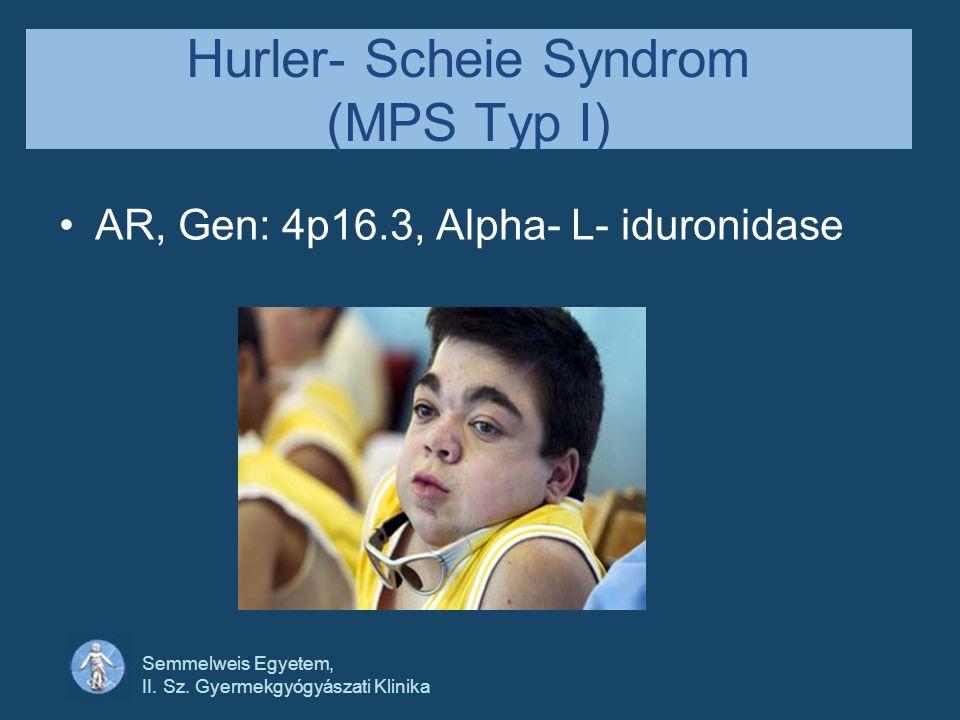 Hurler- Scheie Syndrom (MPS Typ I)