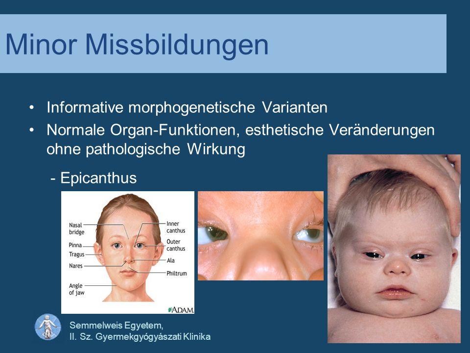 Minor Missbildungen Informative morphogenetische Varianten